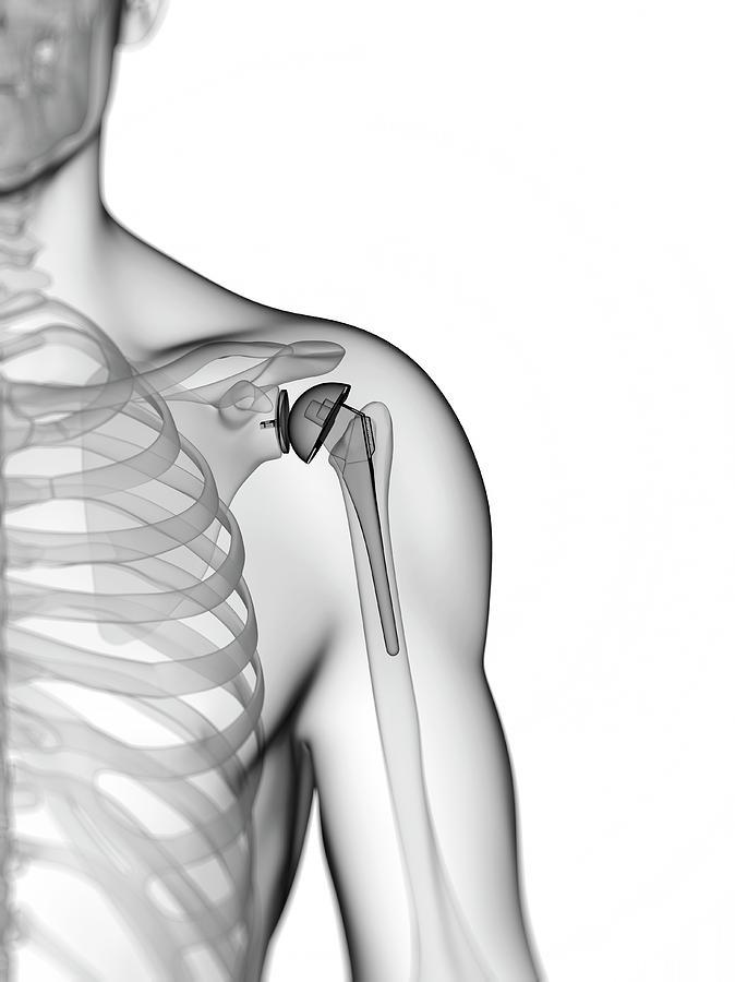 Artwork Photograph - Human Shoulder Replacement by Sebastian Kaulitzki
