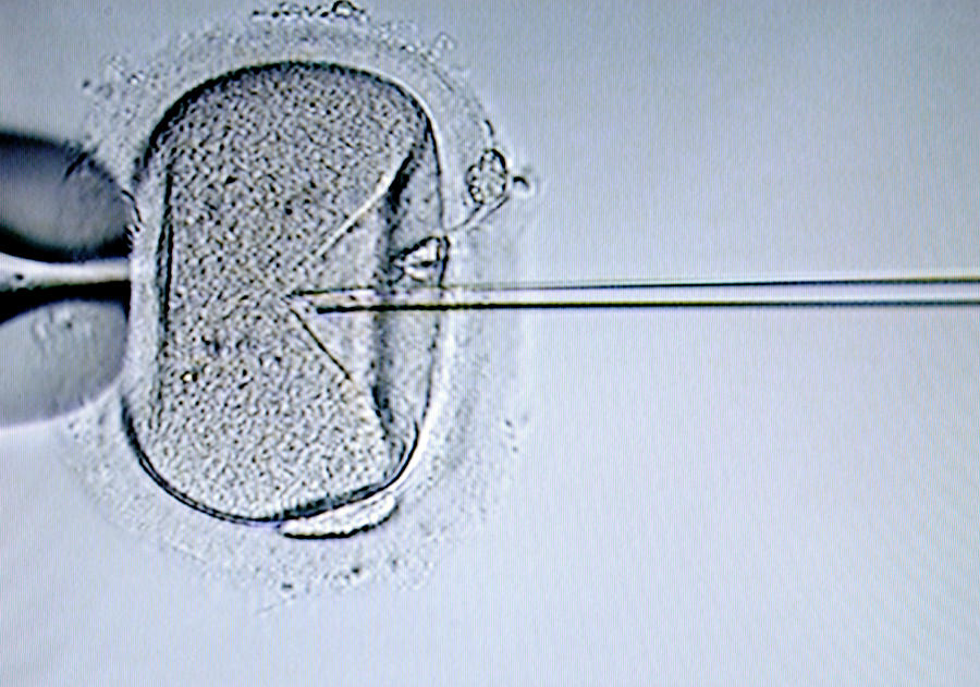 Egg Cell Photograph - Ivf Treatment by Aj Photo/science Photo Library