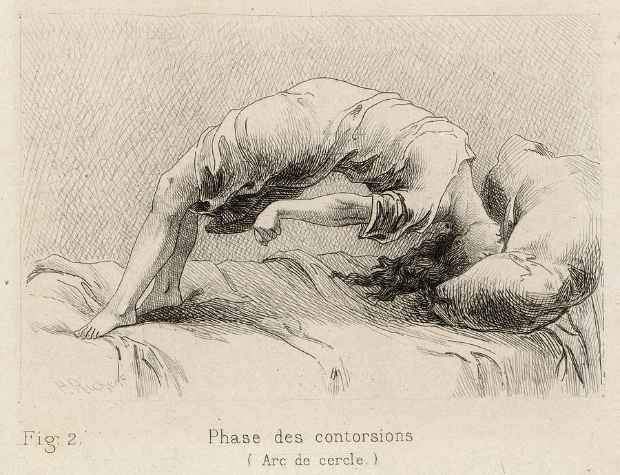 Mental Patient At La Salpetriere Drawing By Mary Evans Picture Library