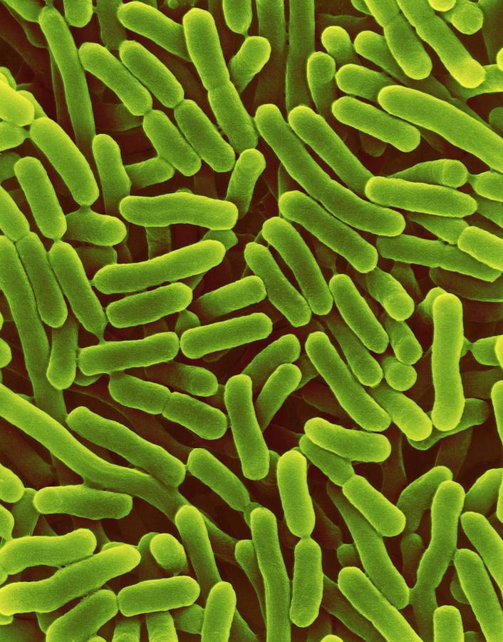 Rod Photograph - Salmonella Enterica by Dennis Kunkel Microscopy/science Photo Library