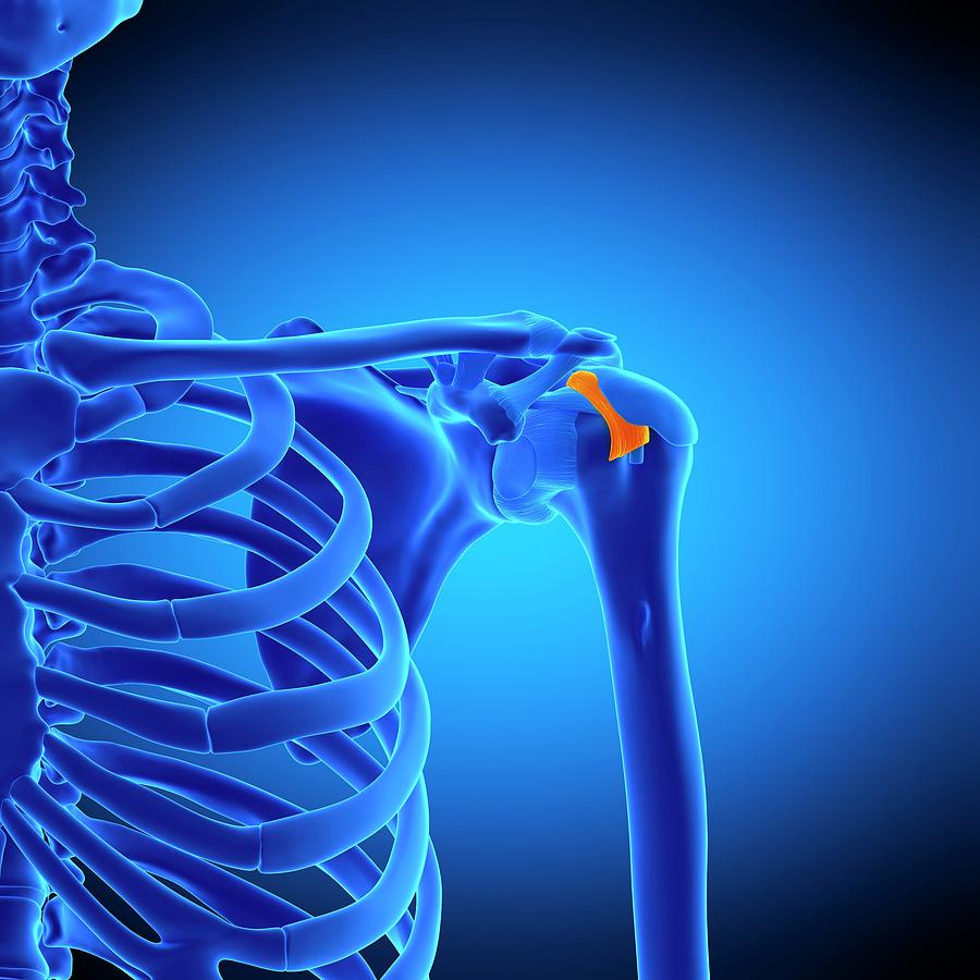 Artwork Photograph - Shoulder Ligament by Sebastian Kaulitzki/science Photo Library