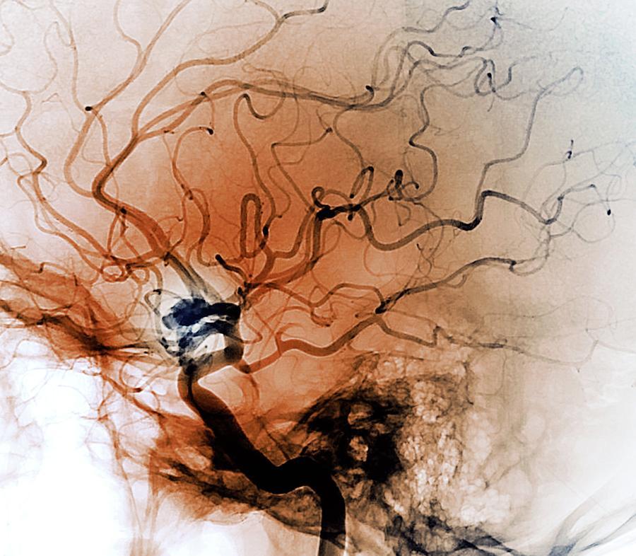 Cerebral Aneurysm Photograph - Cerebral Aneurysm by Zephyr/science Photo Library