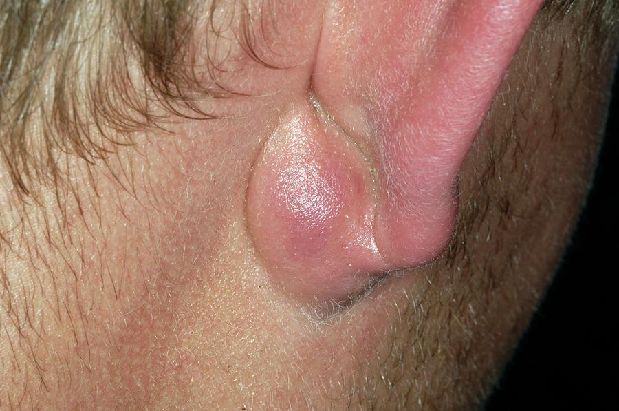 Infection Photograph - Infected Sebaceous Cyst by Dr P. Marazzi/science Photo Library