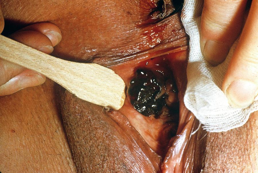 Malignant Melanoma Photograph - Skin Cancer by Cnri/science Photo Library
