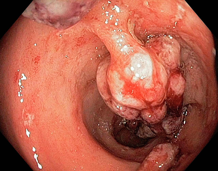 Abnormal Photograph - Crohns Disease by Gastrolab