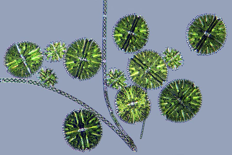 Algae Photograph - Micrasterias Desmids, Light Micrograph by Science Photo Library