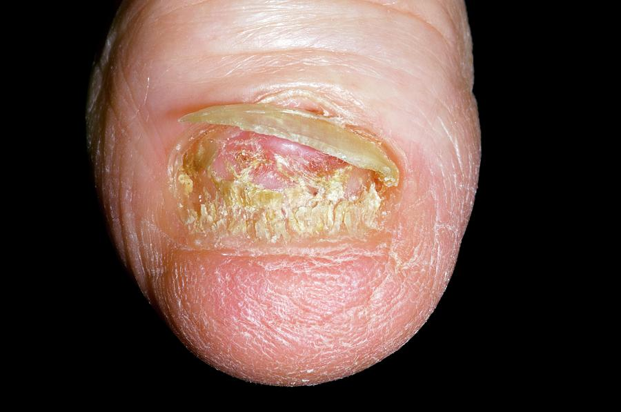 Fungal Nail Infection Photograph by Dr P. Marazzi/science Photo Library