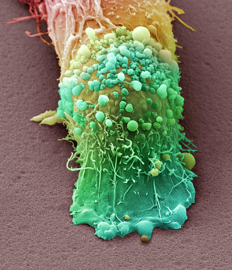 Nobody Photograph - Skin Cancer Cell by Steve Gschmeissner