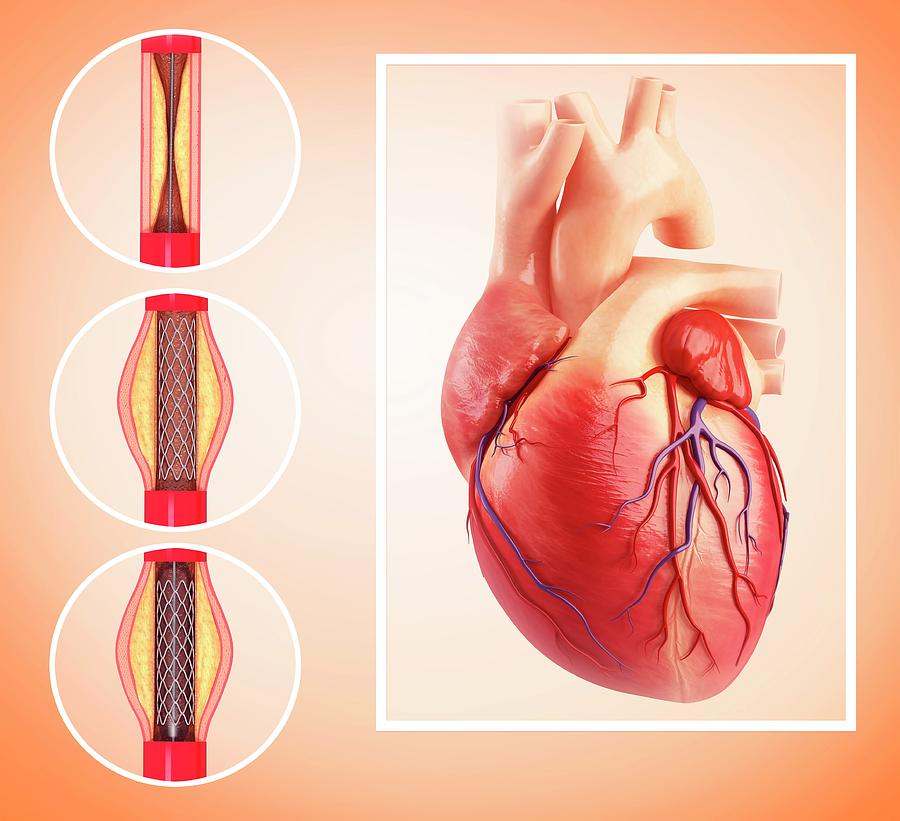 Artwork Photograph - Angioplasty by Pixologicstudio/science Photo Library
