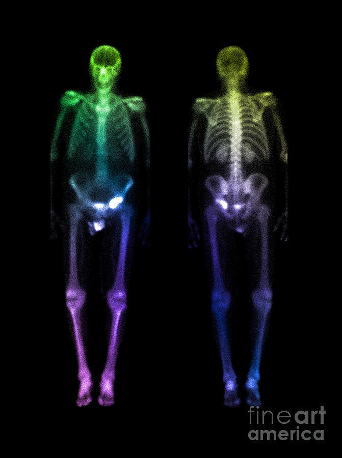 Acetabular Fracture Bone Scan Photograph By Living Art Enterprises