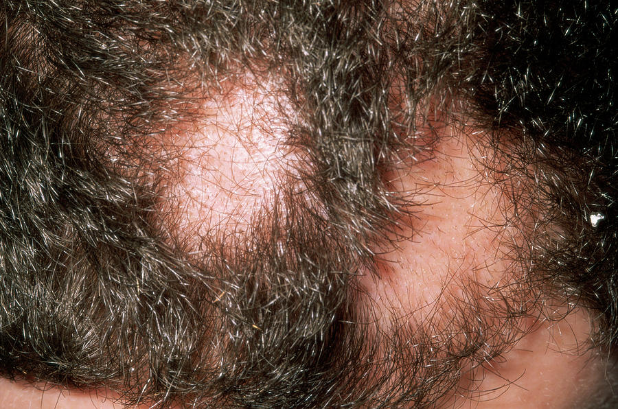 Disease Photograph - Alopecia Areata by Dr P. Marazzi/science Photo Library