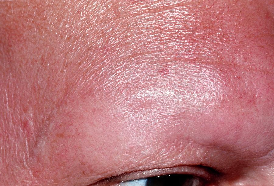 Alopecia Areata Hair Loss Of Eyebrow In Man Photograph By Dr P