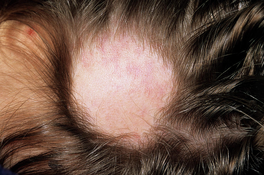 Disease Photograph - Alopecia by Dr P. Marazzi/science Photo Library