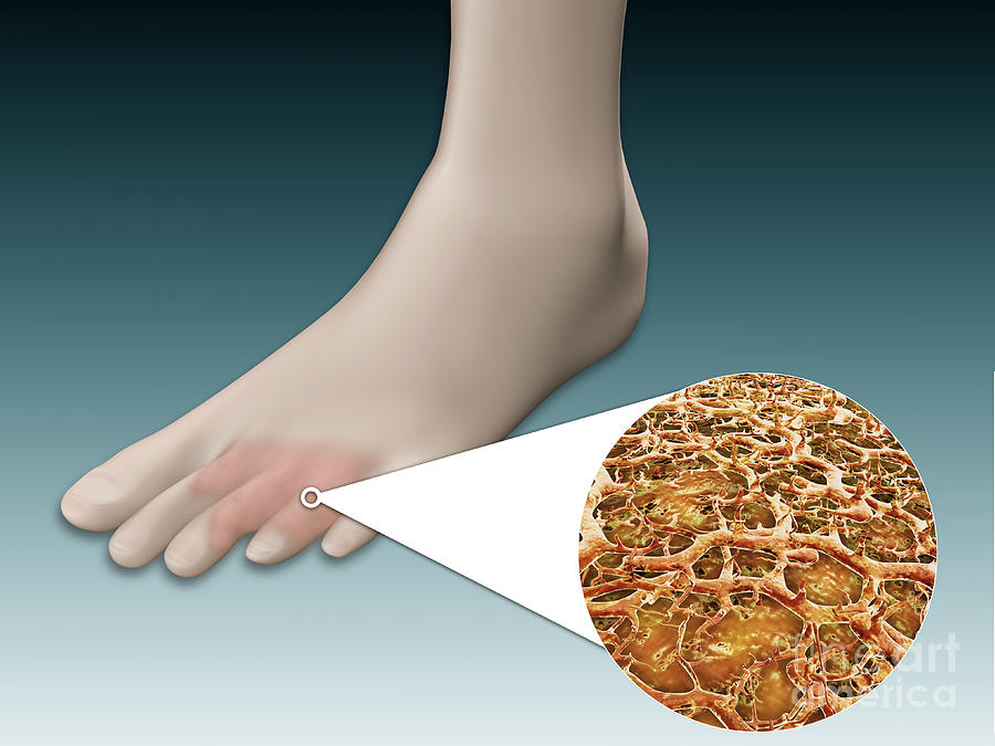 Anatomy Of Foot Fungus With Microscopic Digital Art By Stocktrek Images