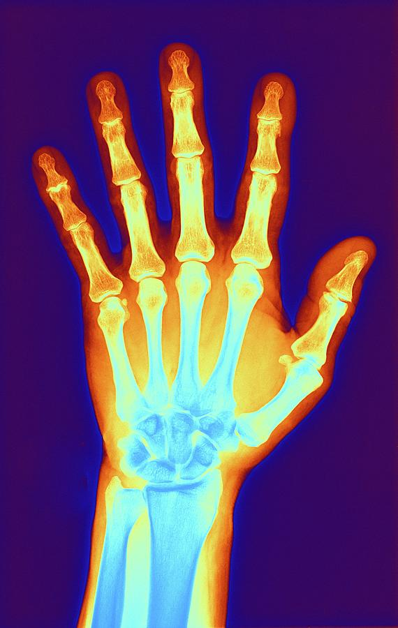 Arthritic Hand, X-ray Digital Art by Science Photo Library - Pasieka