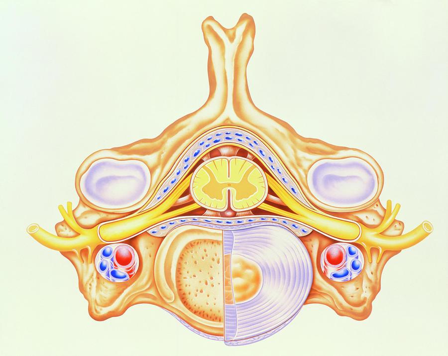 Spinal Cord Photograph - Artwork Of Cervical Vertebra From Human Spine by John Bavosi