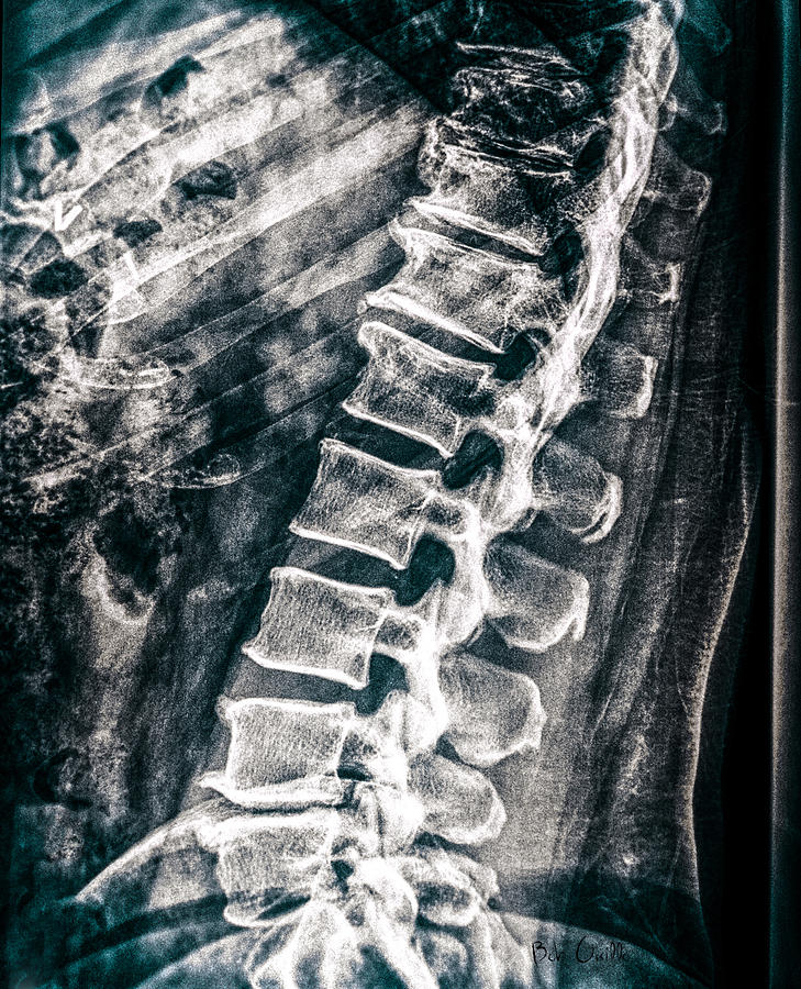 Radiographic Photograph - As If I Have No Skin by Bob Orsillo