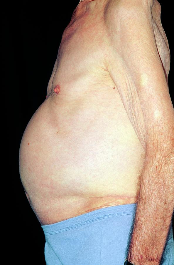 ascites side view of a man s distended abdomen photograph by dr p
