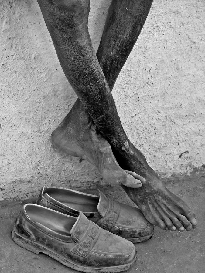 Legs Photograph - Attached by Makarand Purohit