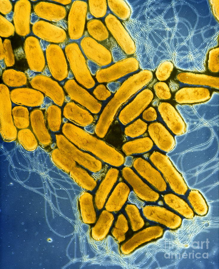 Biology Photograph - B2200275 - Salmonella Enteritidis  by Spl