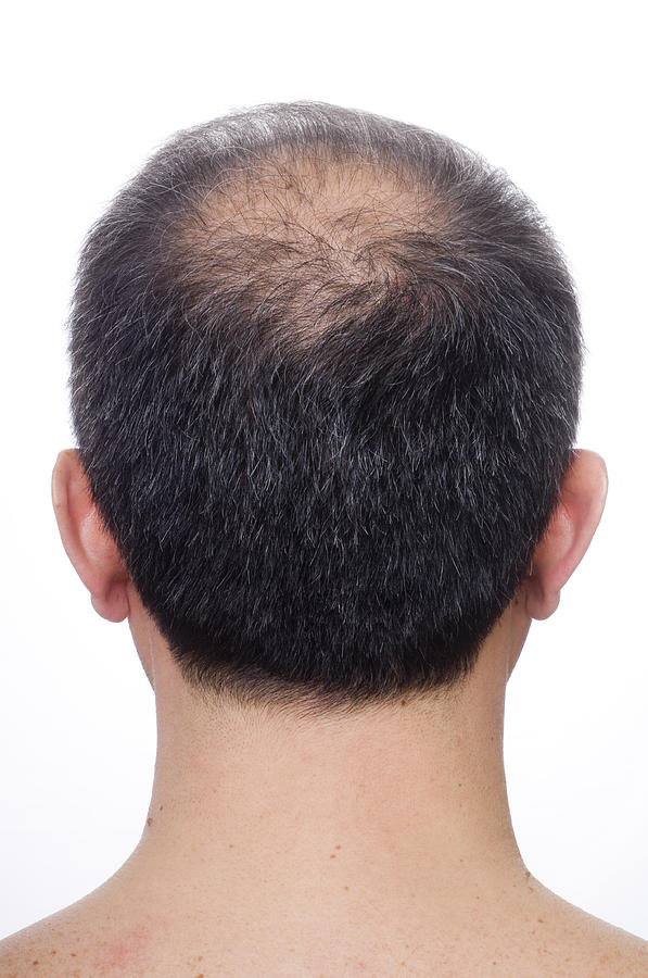 Balding Photograph by Herkisi