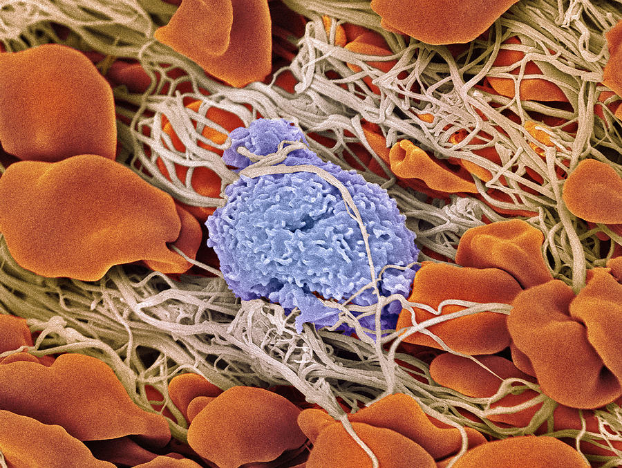 Lymphocyte Photograph - Blood Clot by Steve Gschmeissner/science Photo Library