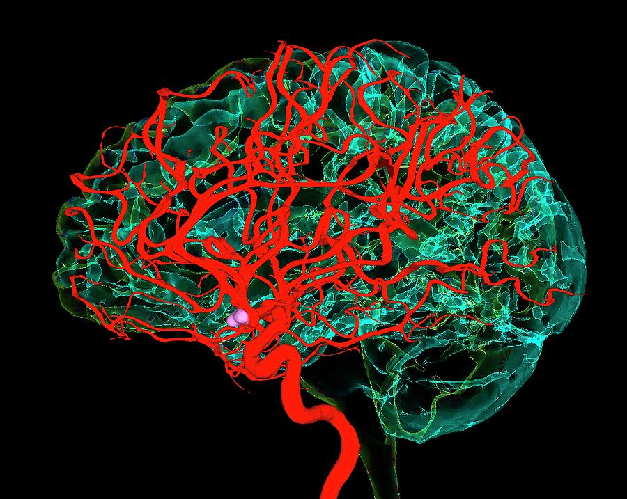 Organ Photograph - Blood Vessels Supplying The Brain by K H Fung/science Photo Library