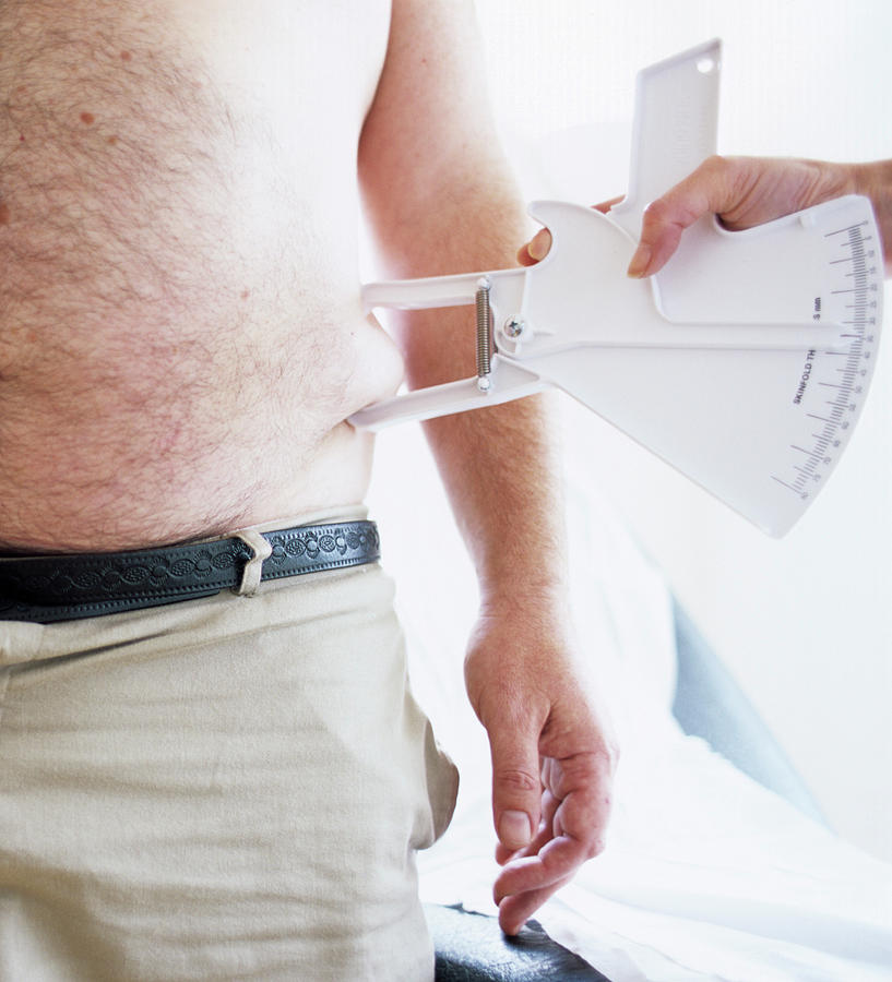 Calipers Photograph - Body Fat Assessment by Ian Hooton/science Photo Library