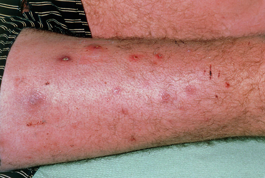 Boils On Thigh Of A Patient Suffering Diabetes by Dr P  Marazzi/science  Photo Library