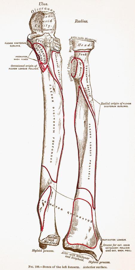 Bones Of Left Forearm Photograph by Granger