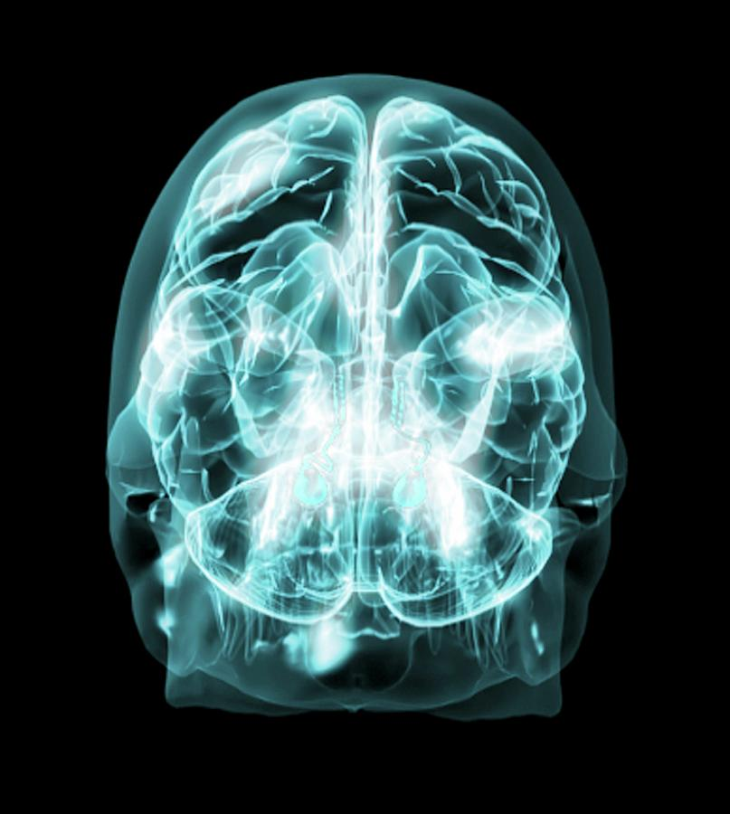 Brain Photograph - Brain Anatomy by Thierry Berrod, Mona Lisa Production/ Science Photo Library