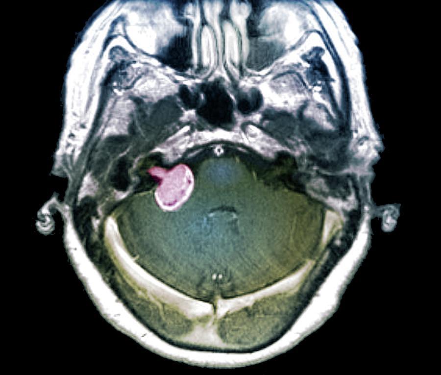 Coloured Photograph - Brain Tumour by Zephyr