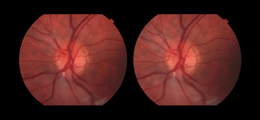 Branch Retinal Artery Occlusion 1 In 5 Photograph By Paul Whitten