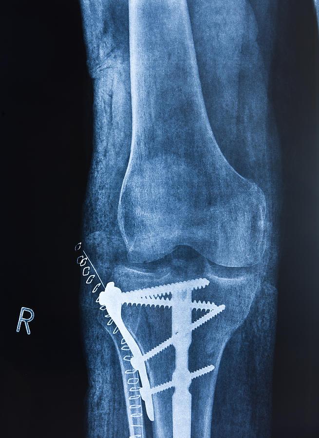 Broken leg Photograph by Pedre