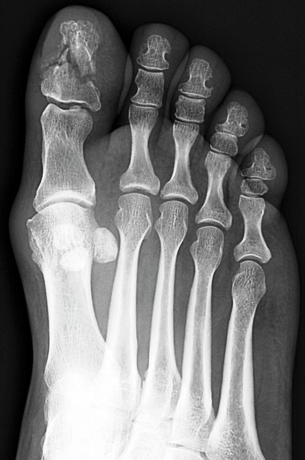 Broken Toe Bone Photograph by Zephyr/science Photo Library