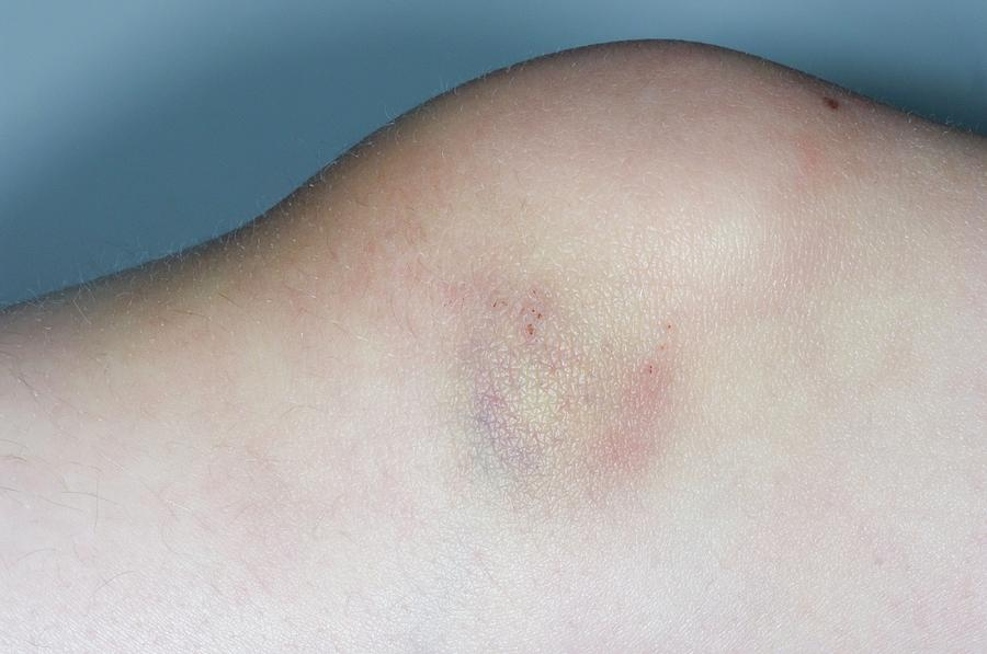Bruised Knee From Sports Injury