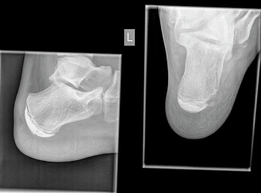 Calcaneus (heel Bone) X-ray Photograph by Photostock-israel