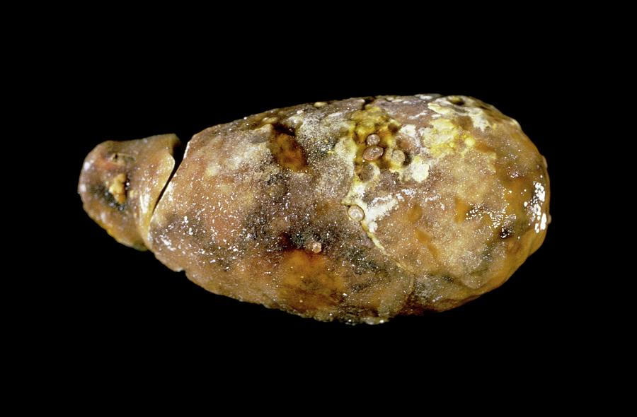 Gallstone Photograph - Calcified Gallbladder by Cnri