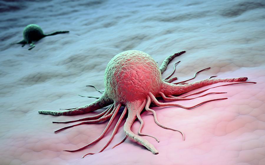 Cancer Cells, Artwork Digital Art by Andrzej Wojcicki