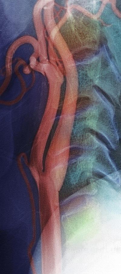 Anatomy Photograph - Carotid Arteries by Simon Fraser/rnc, Newcastle/science Photo Library