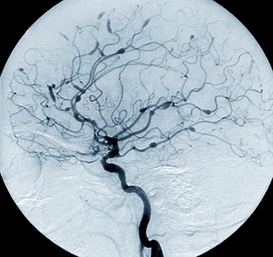 Carotid Angiogram Photograph - Cerebral Aneurysms In Lupus by Zephyr/science Photo Library