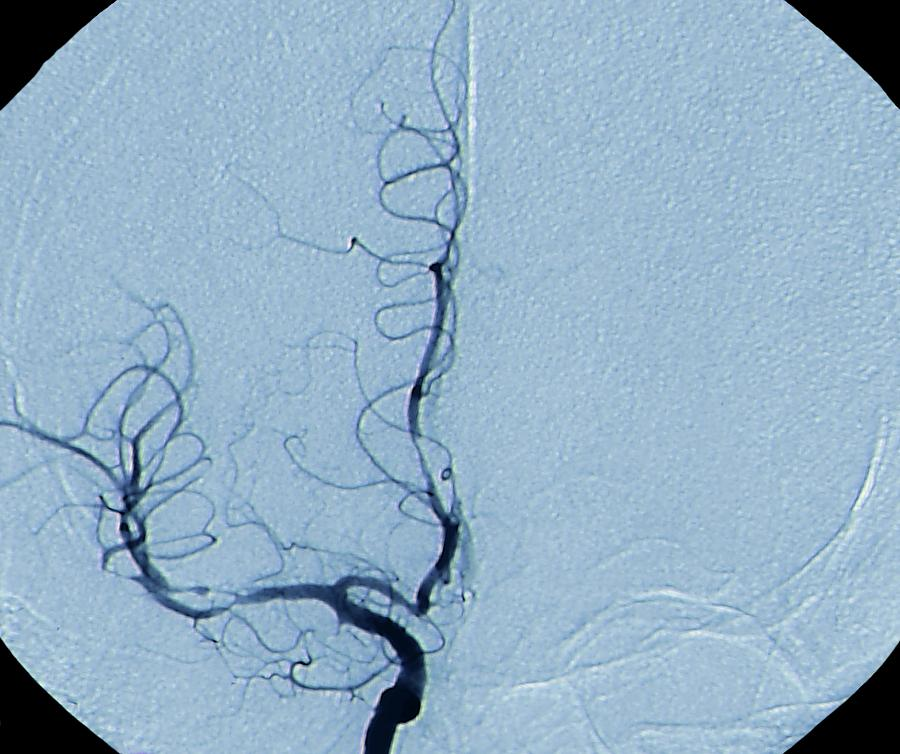 Angiogram Photograph - Cerebral Vasculitis by Zephyr/science Photo Library