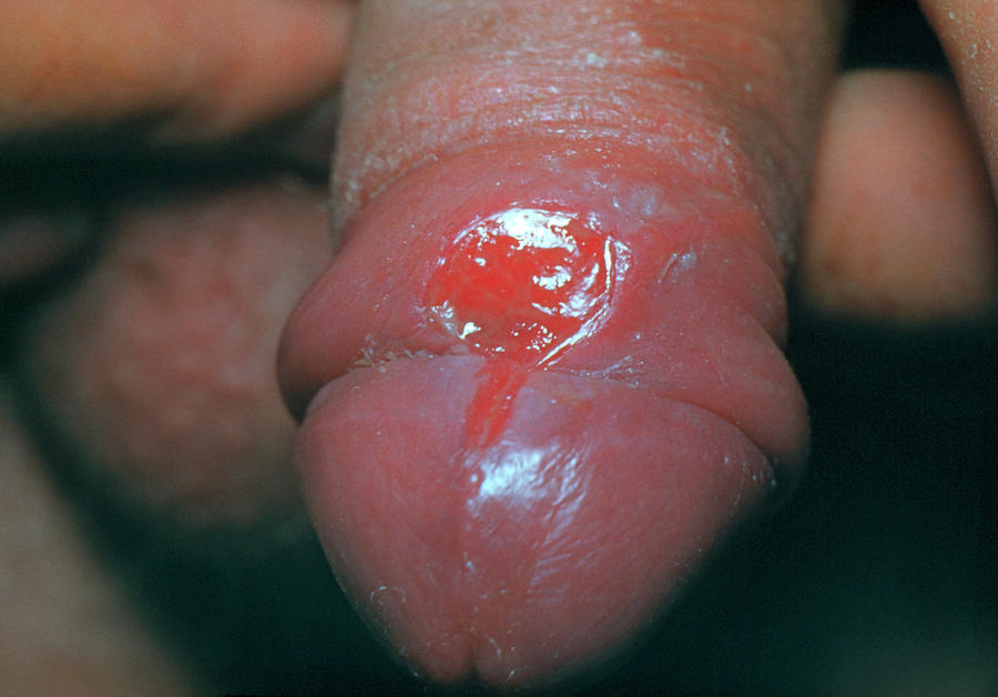 Sore red penis solutions