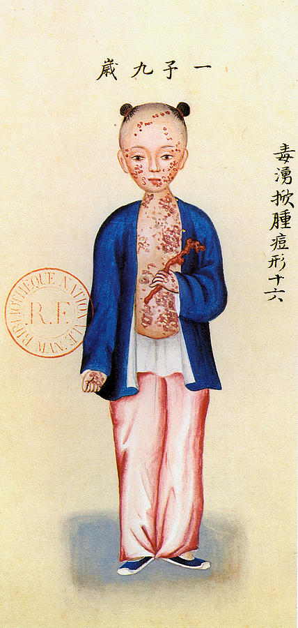 Alternative Painting - China Smallpox by Granger