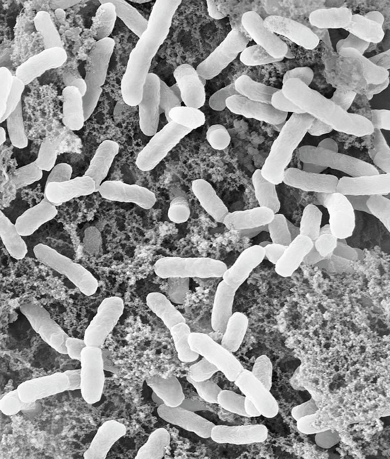 بكتيريا Chlorobium tepidum