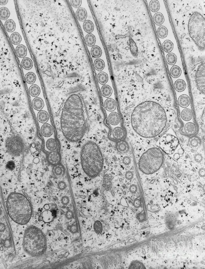 B&w Photograph - Cilia Of Paramecium by David M. Phillips