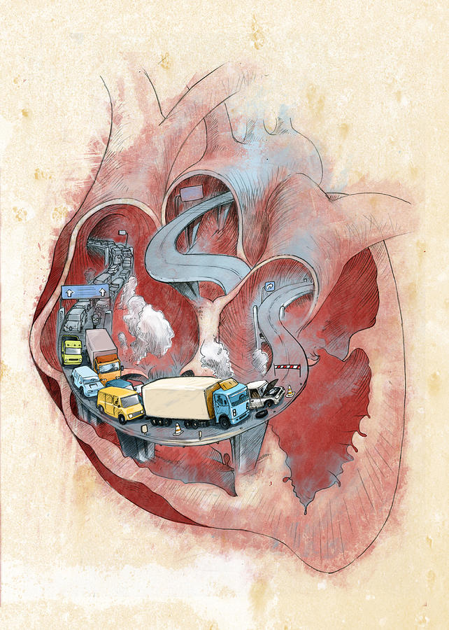 Air Pollution Photograph - Clogged Heart by Fanatic Studio / Science Photo Library