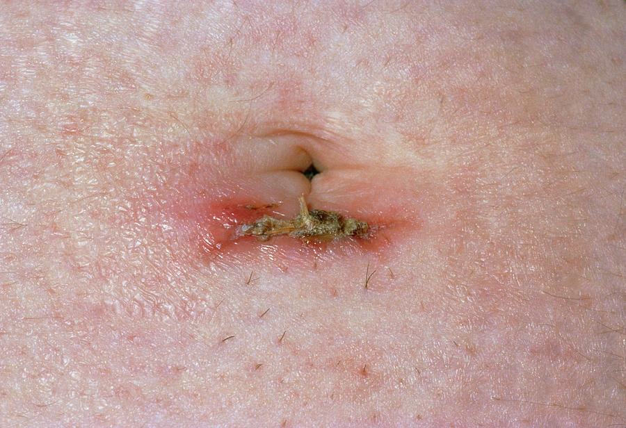 Close Up Of Infected Laparoscopy Scar by Dr P  Marazzi/science Photo Library