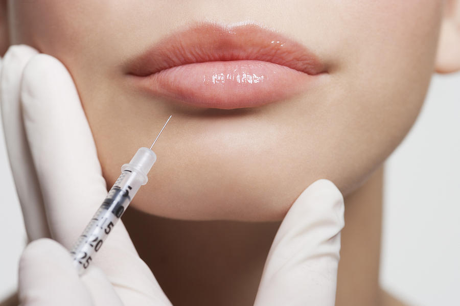 Close up of woman receiving botox injection in lips Photograph by Robert Daly