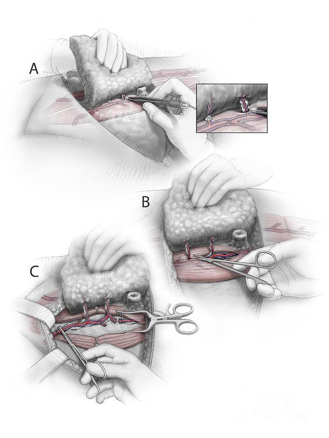 Reconstruction Surgery Digital Art - Color Illustration Depicting The Three by Nicholas Mayeux